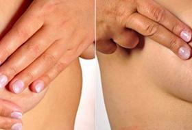 Tumore al seno e diagnosi precoce: impara a fare l'autopalpazione